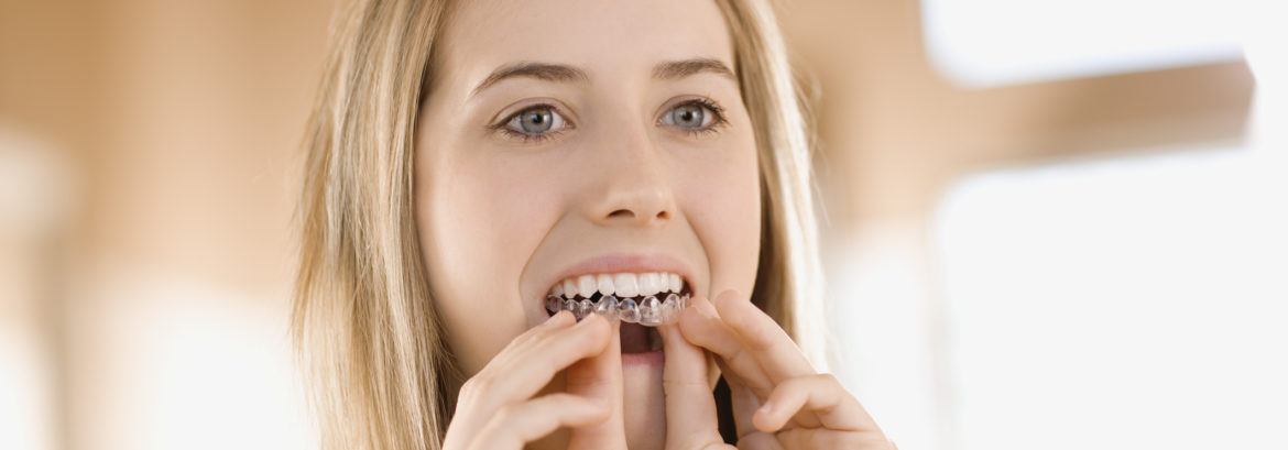Why Invisalign is the Answer to Your Orthodontic Needs